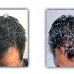 before-after-grow-comb